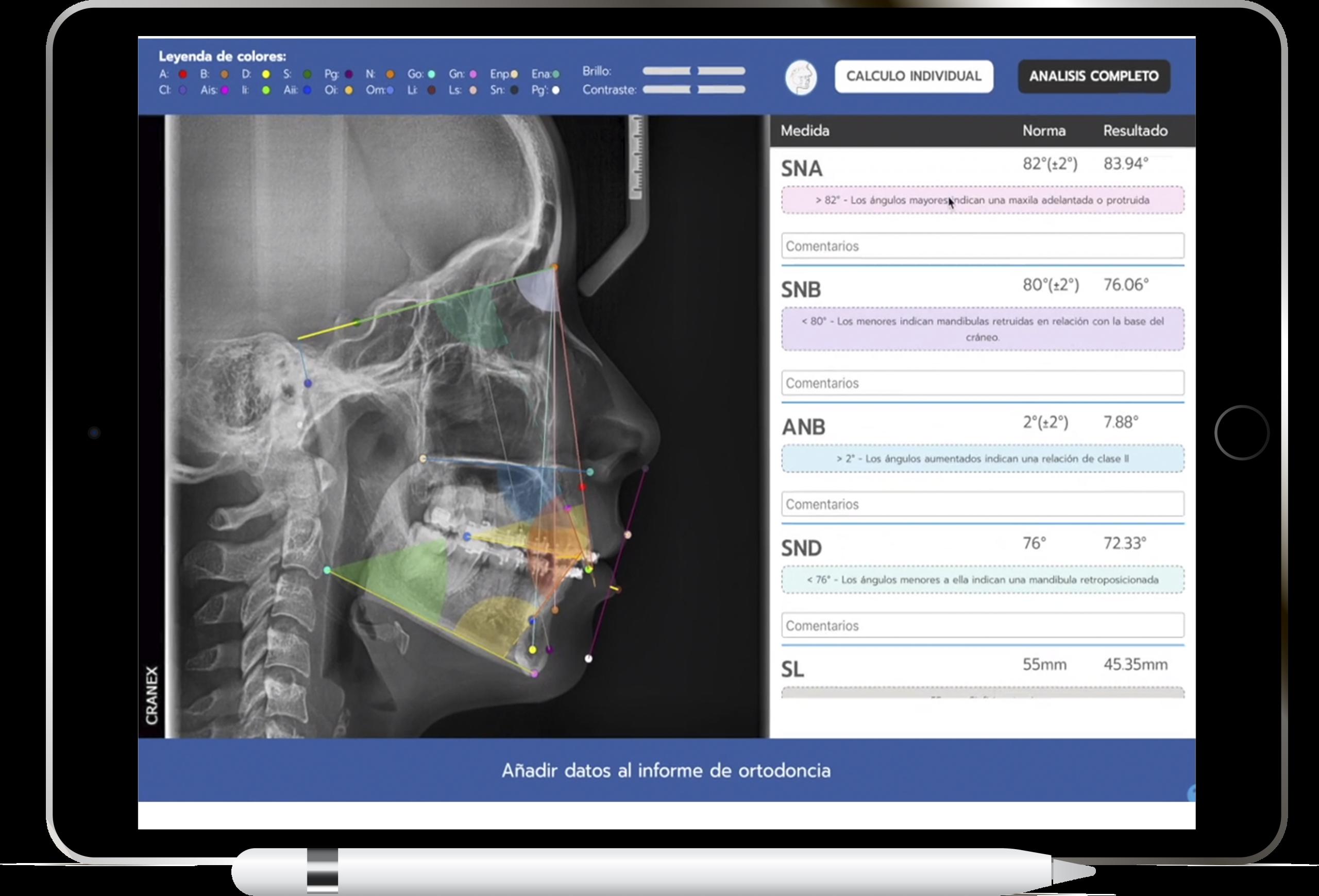 Estudio cefalometrico en la nube con el Software Dental JULIA
